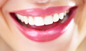 Gateway Dental Care: $2,999 for a Complete Invisalign Treatment at Gateway Dental Care ($6,200 Value)