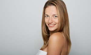 Vanessa at The Derma Room: One, Two, Four, or Six Microdermabrasion Treatments at The Derma Room (Up to 75% Off)