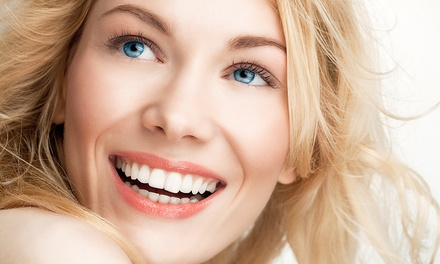 One, Two, or Three 20 Minute Teeth-Whitening Sessions at Cocoa Tanning Studio (Up to 64% Off)