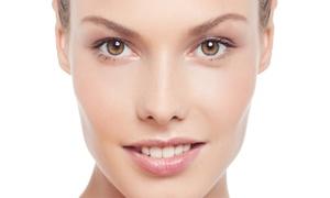 Strefa Fotodepilacji i Modelowania Sylwetki: Usuwanie przebarwień i więcej: laseroterapia na twarz od 79,99 zł w Strefie Fotodepilacji i Modelowania Sylwetki