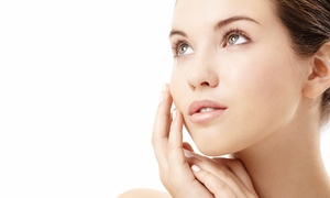 OM MediSpa: $78 for a 90-Minute Soft Tissue Chemical Peel at OM MediSpa ($180 Value)