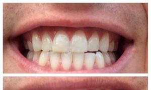 Bleach Party: $99 for $249.99 Worth of Teeth Whitening at Bleach Party