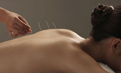 image for One or Three <strong>Acupuncture</strong> Sessions with Relief Therapy at ABC Bodyworks (Up to 75% Off)