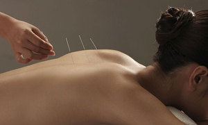 ABC Bodyworks: One or Three Acupuncture Sessions with Relief Therapy at ABC Bodyworks (Up to 76% Off)