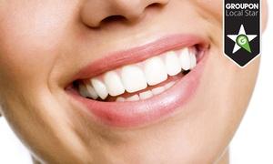 """Dentus Stomatologia: Lampa Beyond: wybielanie, przegląd stomatologiczny i więcej od 299 zł w Gabinetach Stomatologicznych """"Dentus"""""""