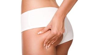 DR ALDO CELLINI: 6 o 8 sedute di lipocavitazione abbinata a mesoterapia (sconto 89%)