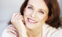 Three or Six Sessions of Microdermabrasion at NuYou (Up to 73% off)