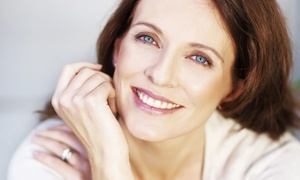 NuYou: Three or Six Sessions of Microdermabrasion at NuYou (Up to 73% off)