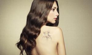 Dermolaser srl: Uno, 3 o 5 trattamenti laser per la rimozione di tatuaggi e macchie (sconto fino a 92%)