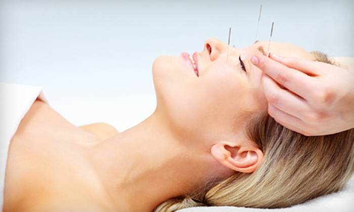 TigerLily Acupuncture - Zilker: One or Two 60-Minute Acupuncture Sessions at TigerLily Acupuncture (Up to 76% Off)