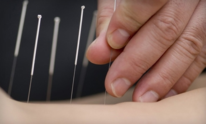 Radiant Point Acupuncture - Northampton: Acupuncture or Pregnancy Massage at Radiant Point Acupuncture in Northampton