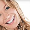 67% Off Zoom! Teeth Whitening