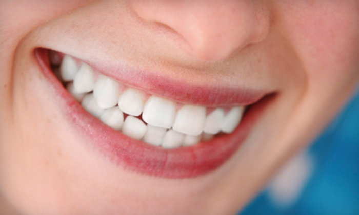 Hotlines Beauty Salon - Ogden: $50 for a Laser Teeth-Whitening Treatment at Hotlines Beauty Salon ($100 Value)