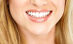 Myriam Britez - Majadahonda: 1 o 2 sesiones de blanqueamiento LED y limpieza bucal con ultrasonidos y fluorización desde 59 €