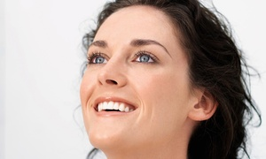 The Renewal Center: $149 for 25 Units of Botox at The Renewal Center in Mukilteo ($300 Value)