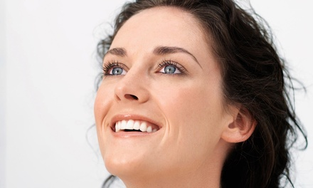 $149 for 25 Units of Botox at The Renewal Center in Mukilteo ($300 Value)