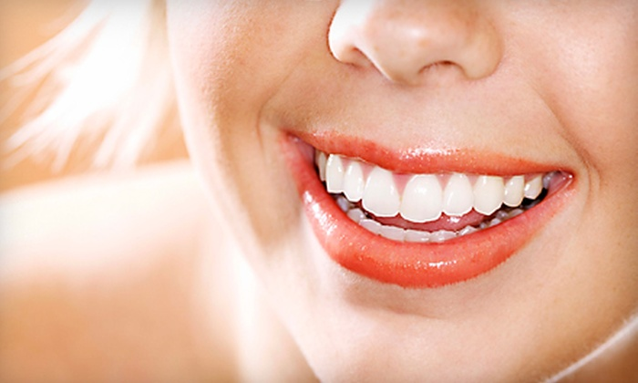 Dr. Benson and Associates - Wyandotte: $39 for a Take-Home Professional Teeth-Whitening Kit from Dr. Benson and Associates in Wyandotte ($300 Value)