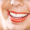 87% Off Teeth-Whitening in Wyandotte
