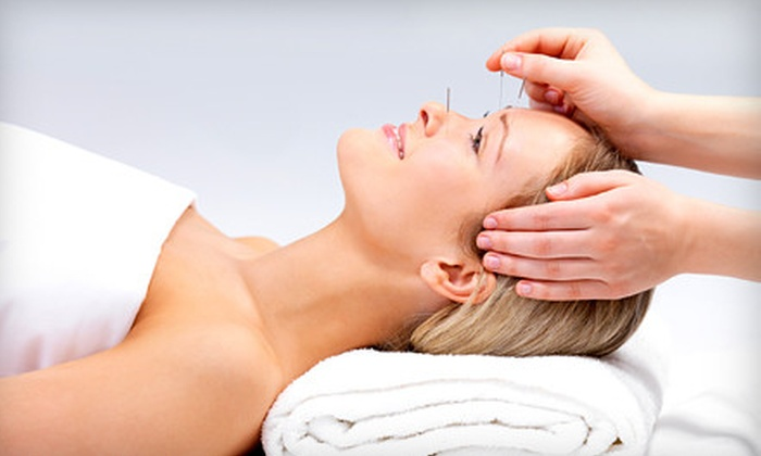 Jaseng Center for Alternative Medicine - Multiple Locations: One or Two 60-Minute Acupuncture Sessions with Cupping Therapy at Jaseng Center for Alternative Medicine (Up to 81% Off)