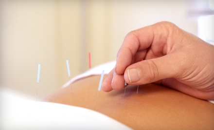 1 Acupuncture Session (a $95 value) - Upstate Acupuncture in Anderson
