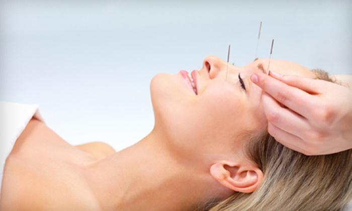 Green Jade Acupuncture - Orange: One or Three Acupuncture Sessions at Green Jade Acupuncture (Up to 69% Off)