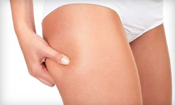 Makana Esthetics Wellness Academy - Ala Moana - Kakaako: $59 for Three Synergie Cellulite Treatments at Makana Esthetics Wellness Academy ($150 Value)