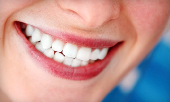 Quinn Dental P.A. - Cedar Grove: $66 for a Dental Package with Exam, Prophylaxis Cleaning, and X-rays at Quinn Dental P.A. in Eagan ($222 Value)