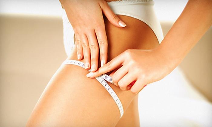Reveal Zerona Laser Body Slimming - Belcaro: $899 for Six Zerona Laser Body-Slimming Treatments at Reveal Zerona Laser Body Slimming ($2,500 Value)