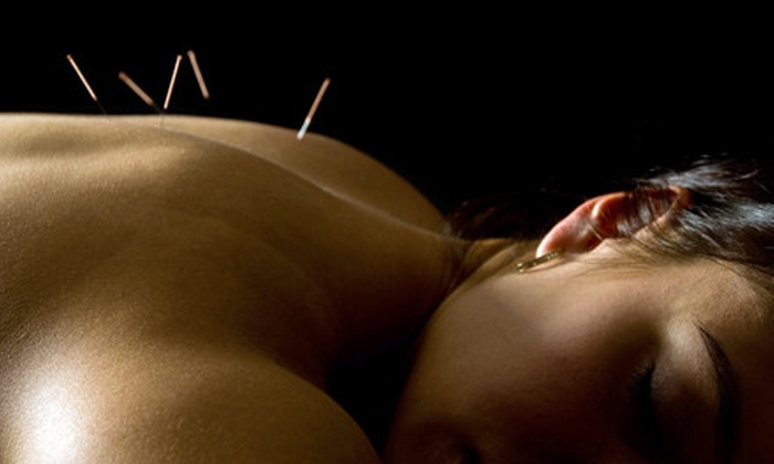 Acupuncture of Indiana - Multiple Locations: $45 for a 90-Minute Acupuncture Session with Consultation at Acupuncture of Indiana ($185 Value)