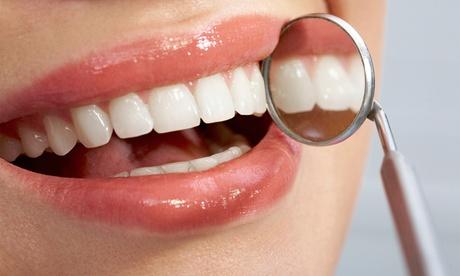 Una o dos sesiones de blanqueamiento LED y limpieza bucal desde 49,95 € en Dentales