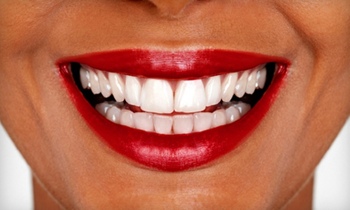 Smile Dental of New Rochelle - New Rochelle: $149 for a Teeth-Whitening Treatment, Exam, and X-rays at Smile Dental of New Rochelle ($826 Value)