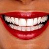 82% Off Teeth Whitening in New Rochelle