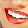 75% Off Teeth Whitening at SmileLabs of Omaha