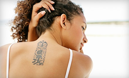 1 Tattoo-Removal Treatment (a $300 value) - Laser Experts in Tulsa