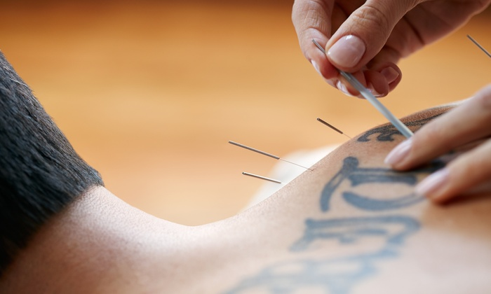 Organic Health Institute - Belknap: An Acupuncture Treatment and an Initial Consultation at Organic Health Institute (67% Off)