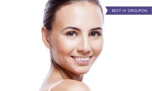 New U Medspa, LLC: $149 for 20 Units of Botox with Collagen Mask at New U Medspa, LLC ($220 Value)
