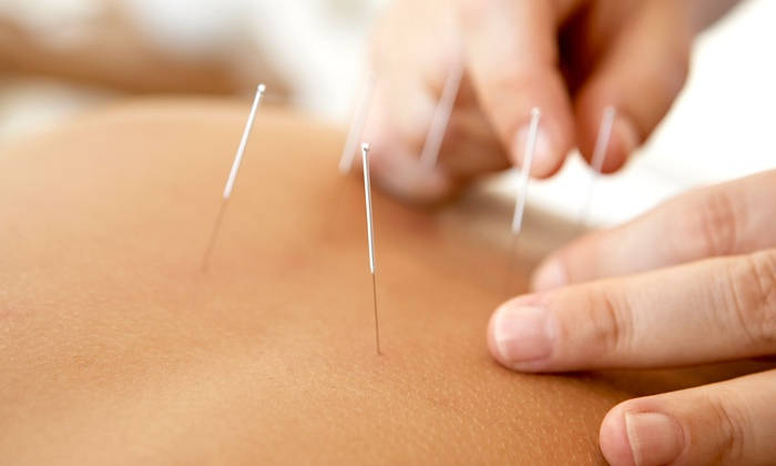 Pennridge Wellness Center - Pennridge Wellness Center: One, Three, or Five Acupuncture Sessions at Pennridge Wellness Center (Up to 84% Off)