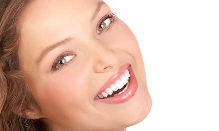 $129 for an In-Office Venus Teeth-Whitening Treatment at Kupchik Dental ($575 Value)