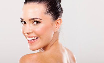 Teeth Whitening: One Session (£69) or Two (£109) at NW1 Dental Care (Up to 78% Off)