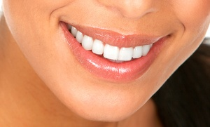 1, 2 o 4 empastes dentales con limpieza bucal desde 19,90 €