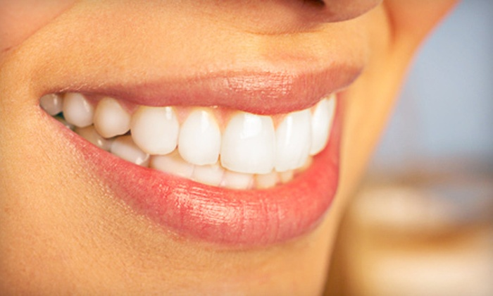Coral Ridge Smile - Knoll Ridge: $1,999 for Invisalign Express & Whitening Package with Dental Exam and X-rays at Coral Ridge Smile ($4,500 Total Value)