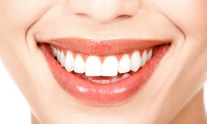 Dr. Brannon Reed, DDS: $33 for a Dental Exam, X-Rays, Cleaning, and Take-Home Whitening from Dr. Brannon Reed, DDS in Scottsdale (Up to 89% Off)