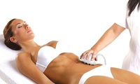 GROUPON: Up to 73% Off Venus Freeze Weight Loss Dabbs Rehab Center of Maryland