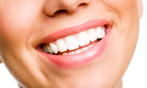 Riverwoods Smiles: $59 for a 30-Minute Consultation and Fitting for Custom Bleach Trays at Riverwoods Smiles ($415 Value)