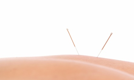 One-Hour Acupuncture and Life-Coaching Session at Phoenix & Dragon (65% Off)