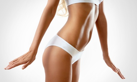 One or Two Cavitation Treatments with RF Vacuum and Body Tightening at Premier Body Sculpt (Up to 88% Off)