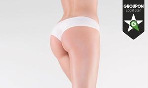 Nutri10beauty: Tratamiento corporal médico reafirmante con 10 o 20 hilos tensores desde 139 €