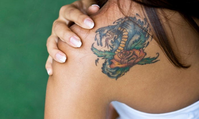 Fade Away Laser Tattoo Removal - Multiple Locations: One or Two Sessions at Fade Away Laser Tattoo Removal (Up to 89% Off)