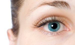 Avant Lasik Spa: $1,916 for a LASIK Procedure for Both Eyes at Avant Lasik Spa ($3,990 Value)