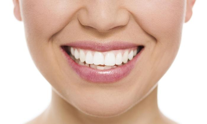 Platinum Smiles 360 - Perimeter Center: Up to 50% Off In-Office Teeth Whitening at Platinum Smiles 360